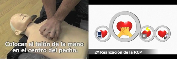 Médicos usan el iPhone para detectar las cataratas 3
