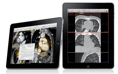 Médicos usan el iPhone para detectar las cataratas 1